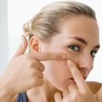 Mẹo chăm sóc da mụn hiệu quả tại nhà