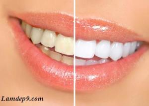 Cách tẩy trắng răng hiệu quả, nhanh và đơn giản tại nhà