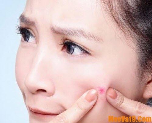 Mẹo trị sẹo thâm hiệu quả và nhanh nhất