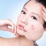 Cách làm mặt nạ đất sét trị mụn và dưỡng da hiệu quả