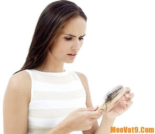 Mẹo trị rụng tóc bằng tỏi cực hiệu quả: Cách trị rụng tóc bằng tỏi rất đơn giản, nhanh chóng