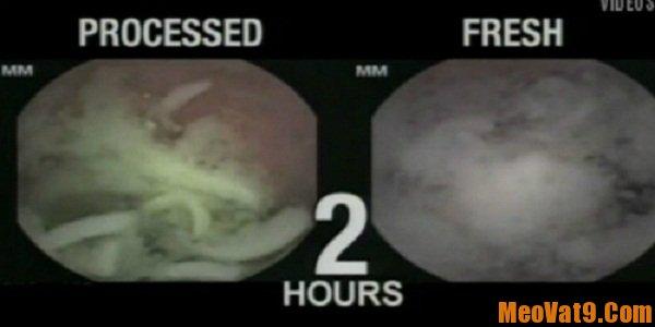 Tác hại của mì tôm mà bạn nên biết, ăn nhiều mì tôm có ảnh hưởng gì tới sức khỏe hay không?